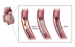 3-cardiac-catherization