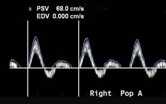 3-doppler-ultrasound