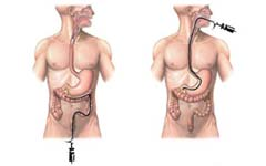 3-endoscopy