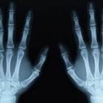 3-x-ray