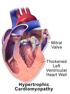 Cardiomyopathy Hypertrophic-med