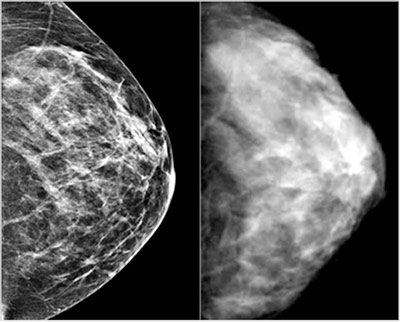 vitalim standard practices mammography