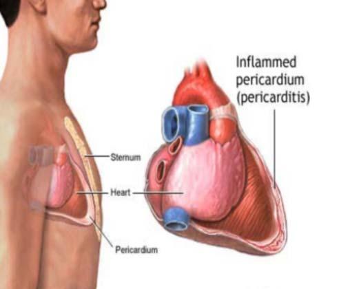 Pericarditis-med
