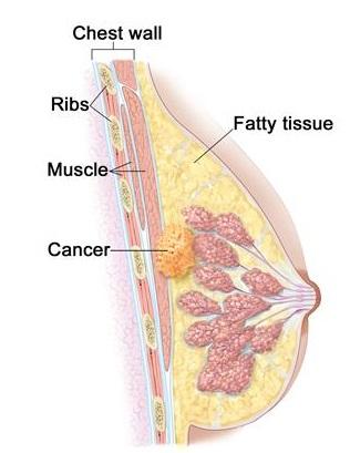 breast carcinoma