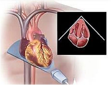 vitalim standard practices cardiac testing