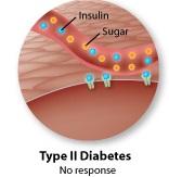 diabetes type2