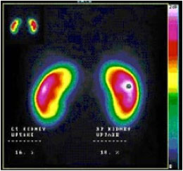 general nuclear imaging how procedure work
