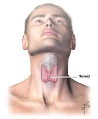 hic_hyperthyroidism
