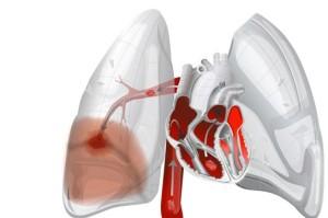 lungs-pulmonary-embolism