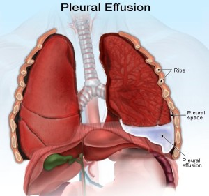 pleural-effusion